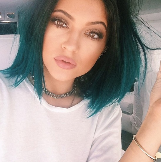Τα νέα χείλη της Kylie Jenner