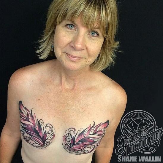 τατουάζ μαστεκτομής