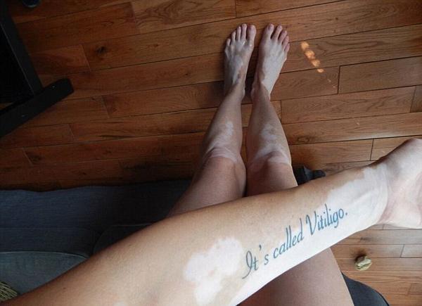 τατουάζ για λεύκη