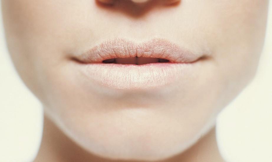 τρικ ομορφιάς για σκασμένα χείλη