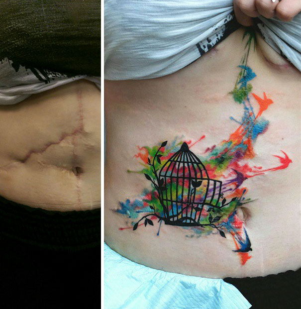 scars-tattoo-cover-up-113-590b3988afc9e__605