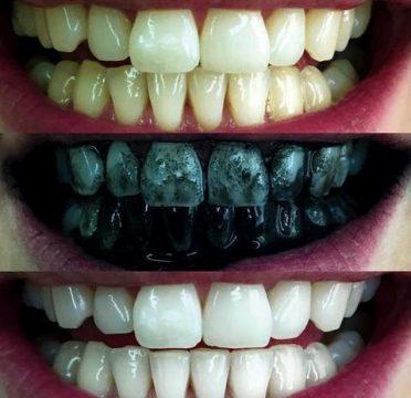 ενεργός άνθρακας λεύκανση δοντιών